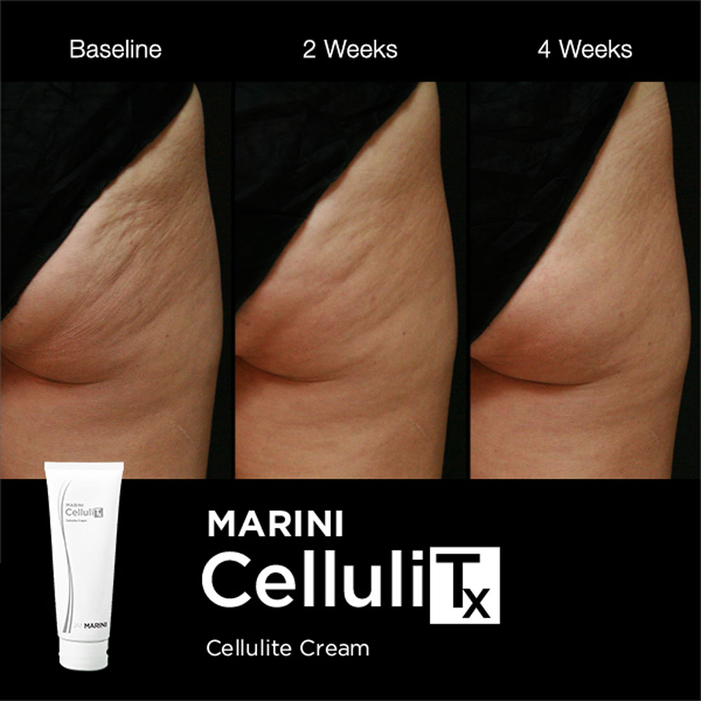 Marini Celluli TX: Cellulite Cream