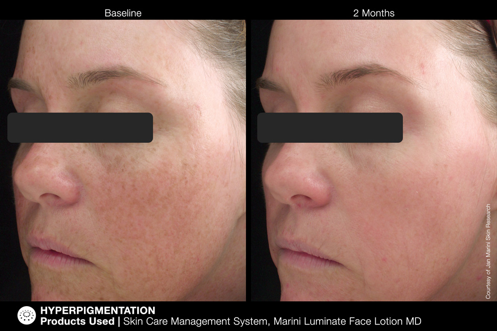 Skin Care Management System, Marini Luminate Face Lotion MD